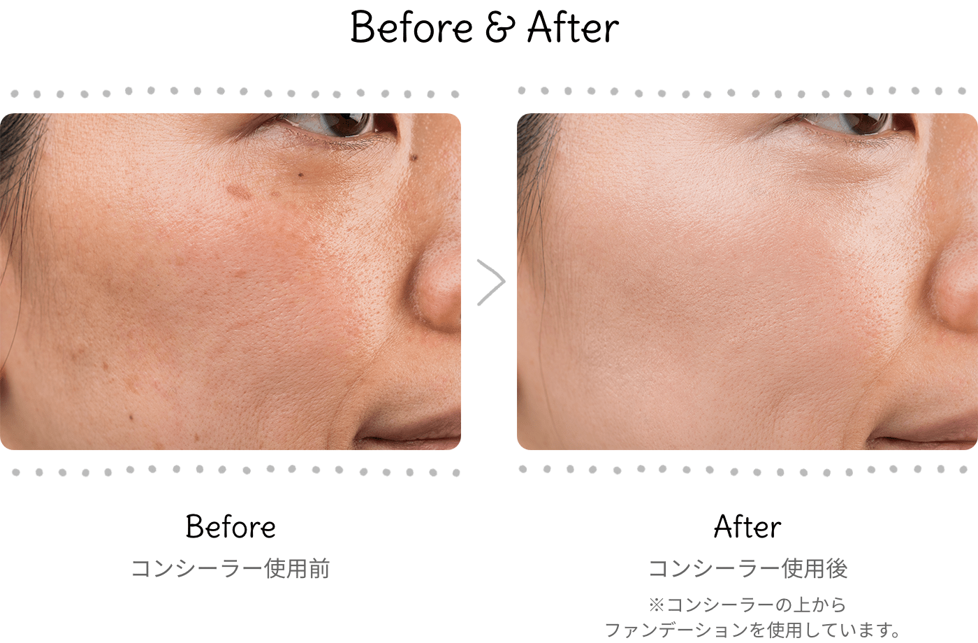 before-after_concealer